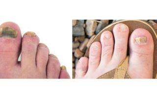 most effective treatment for toenail fungus