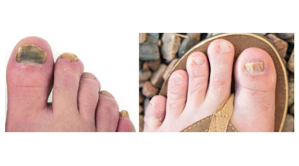 Most effective treatment for toenail fungus | Nail Place